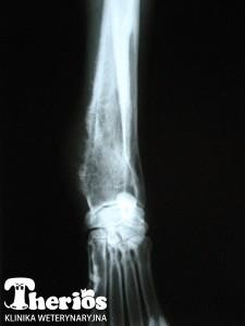 Zdjęcie rentgenowskie chorej kończyny - projekcja strzałkowa