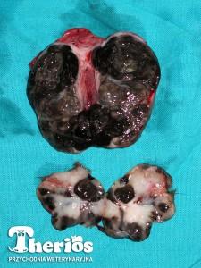Guz pierwotny (mniejszy) oraz zajęty przerzutami czerniaka węzeł chłonny