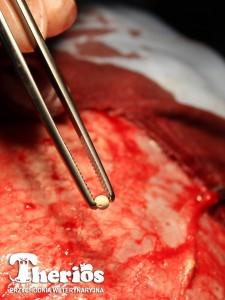Implant cisplatynowy wszczepiany w PW THERIOS pacjentowi z czerniakiem złośliwym