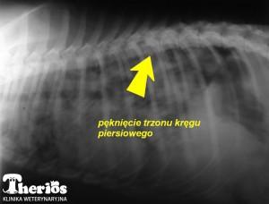 Zdjęcie Rtg - widoczne pęknięcia trzonu kręgu piersiowego Th 10.