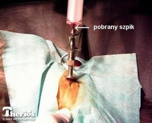 Pobieranie biopsji szpiku