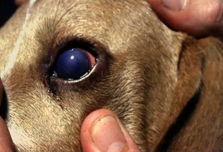 Choroba Rubartha (zakaźne zapalenie wątroby)