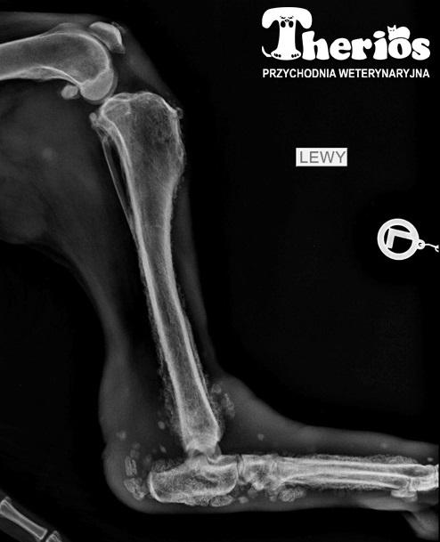 Osteopatia przerostowa