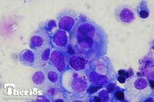 Badanie cytologiczne osadu moczu: atypowe komórki nabłonkowe. Barwienie Hemastain, pow. 1000x. Fot. Maja i Jacek Ingarden