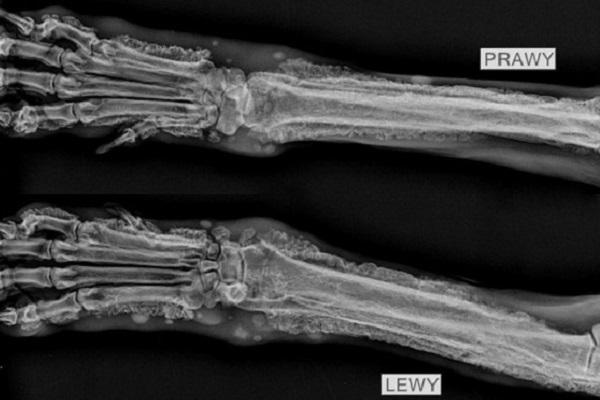 Osteopatia przerostowa – co to takiego?